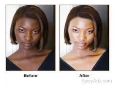 Skin Bleaching Cream..+27820451508