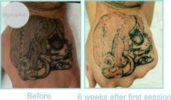 Searching For Best Laser Tattoo Removal at Sufficient Cost