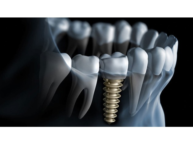 Boost Up Your Appearance with Dental Implants in Colchester in Colchester