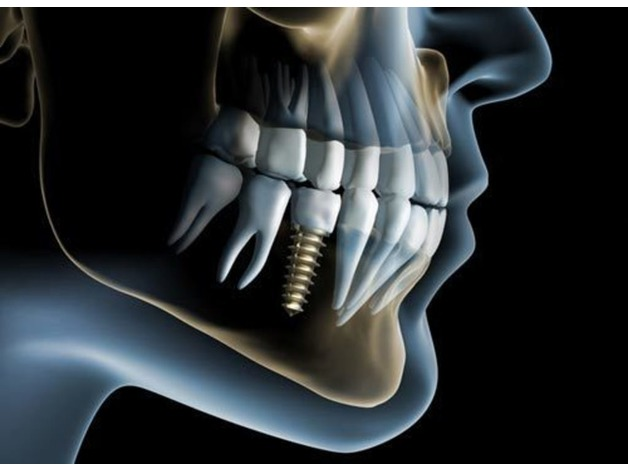 Restore Your Missing Tooth with Dental Implants in Croydon in Croydon