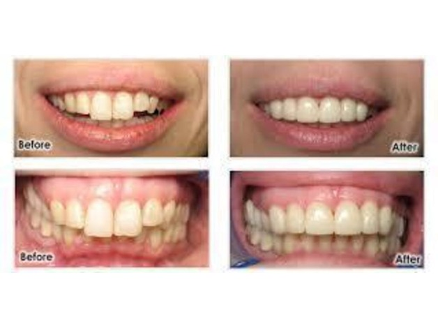 Avail Cosmetic Dental Treatment from Our Dental Clinic in London in Watford